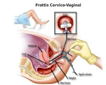 Un frottis vaginal